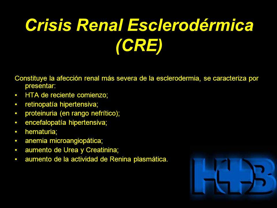 Crisis Renal Esclerodérmica (CRE) Constituye la afección renal más severa de la esclerodermia, se caracteriza por presentar: HTA de reciente comienzo; retinopatía hipertensiva; proteinuria (en rango nefrítico); encefalopatía hipertensiva; hematuria; anemia microangiopática; aumento de Urea y Creatinina; aumento de la actividad de Renina plasmática.