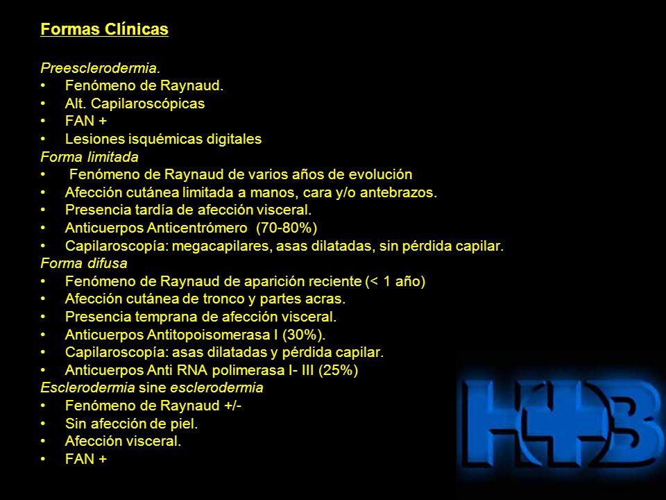 Formas Clínicas Preesclerodermia. Fenómeno de Raynaud. Alt. Capilaroscópicas FAN + Lesiones isquémicas digitales Forma limitada Fenómeno de Raynaud de