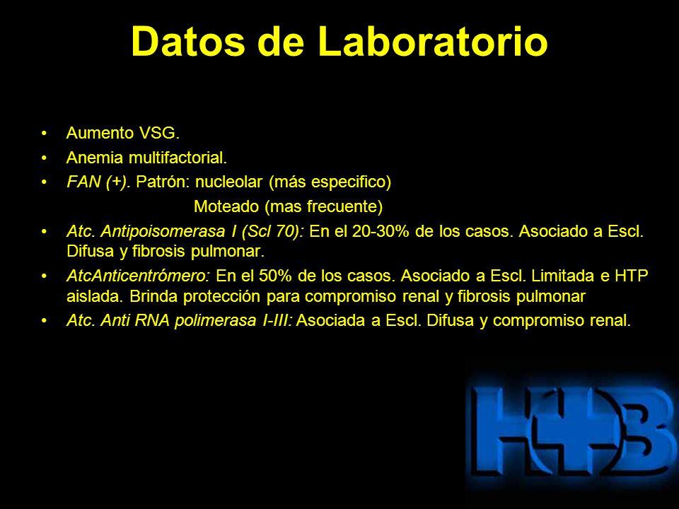 Datos de Laboratorio Aumento VSG. Anemia multifactorial. FAN (+). Patrón: nucleolar (más especifico) Moteado (mas frecuente) Atc. Antipoisomerasa I (S