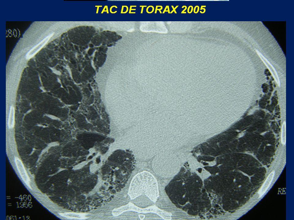 Vidrio esmerilado Áreas de hipoatenuación (Atrapamiento aéreo) Bronquiolectasias por tracción OTRA VISTA…