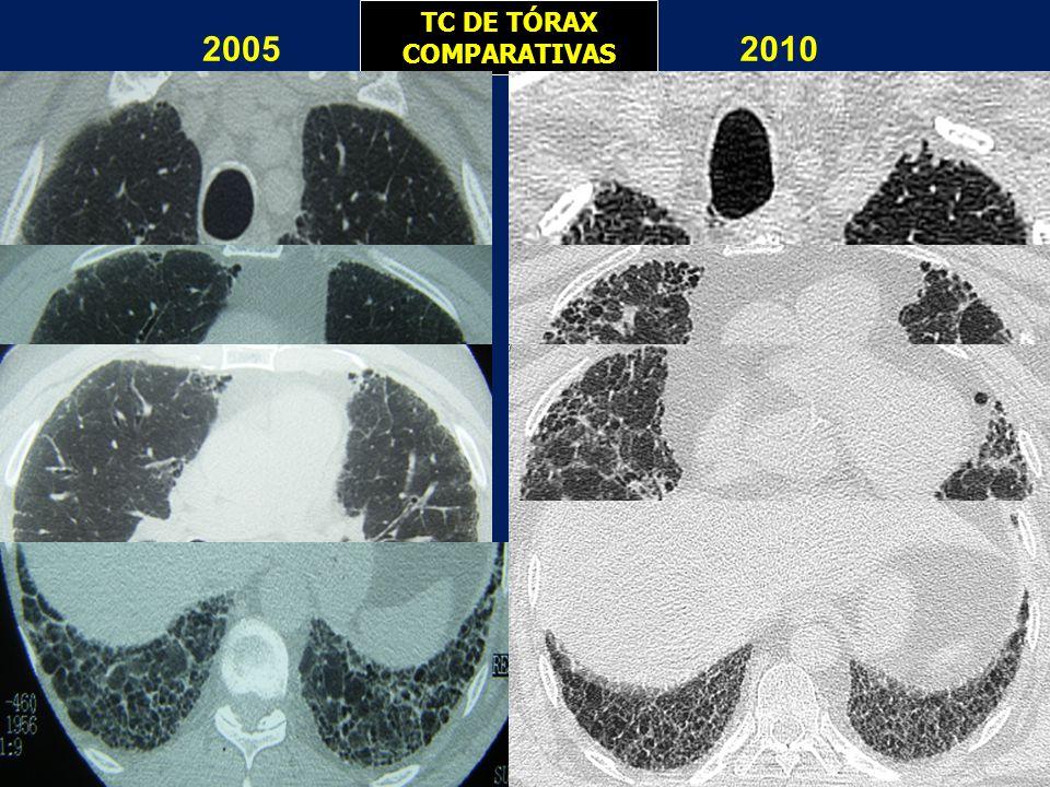 TC DE TÓRAX COMPARATIVAS 20052010