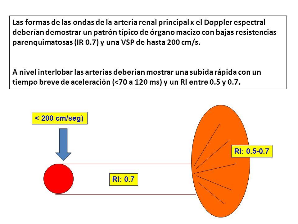 Las formas de las ondas de la arteria renal principal x el Doppler espectral deberían demostrar un patrón típico de órgano macizo con bajas resistenci