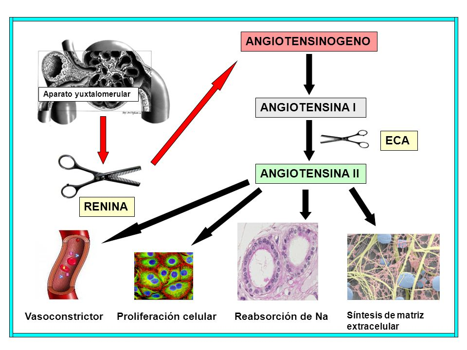 Aparato yuxtalomerular RENINA ANGIOTENSINOGENO ANGIOTENSINA I ANGIOTENSINA II Proliferación celularVasoconstrictorReabsorción de Na Síntesis de matriz extracelular ECA