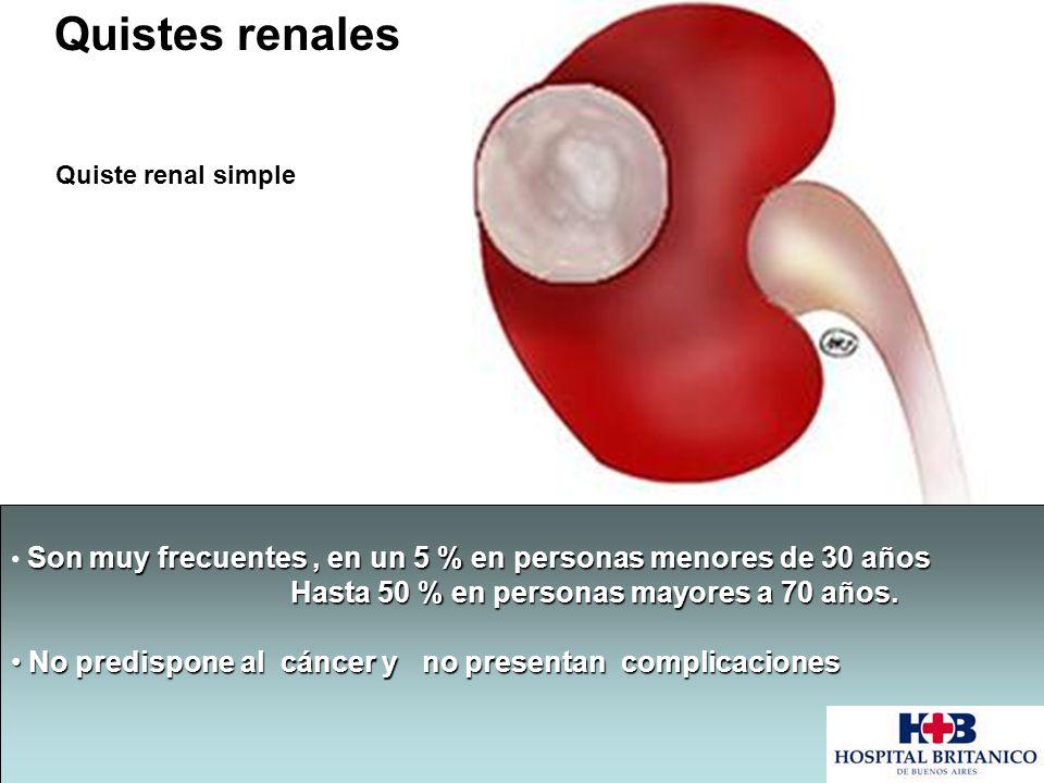 Quistes renales Quiste renal simple Son muy frecuentes, en un 5 % en personas menores de 30 años Hasta 50 % en personas mayores a 70 años. Hasta 50 %