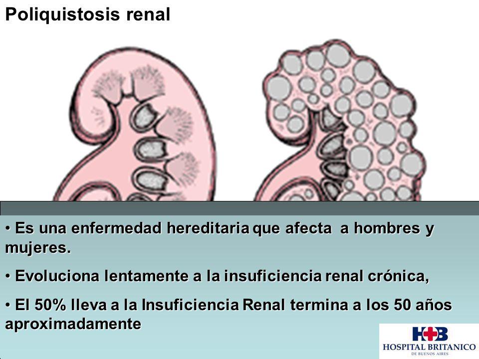 Poliquistosis renal Es una enfermedad hereditaria que afecta a hombres y mujeres. Es una enfermedad hereditaria que afecta a hombres y mujeres. Evoluc