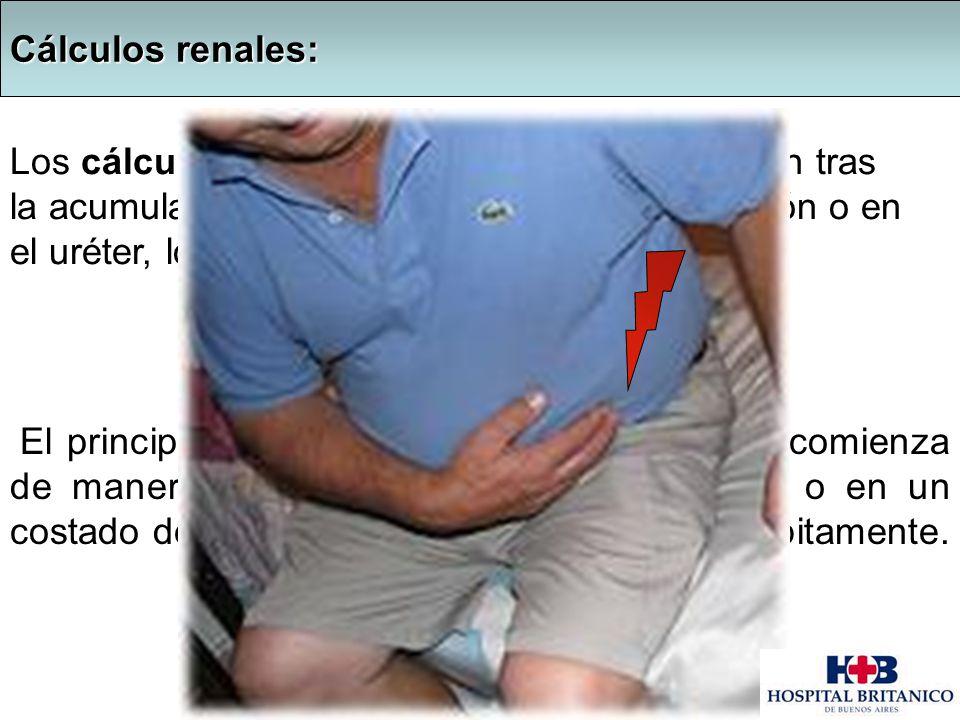 : Los cálculos renales o litiasis renal se forman tras la acumulación de pequeños cristales en el riñón o en el uréter, los cuales tapan las vías urin
