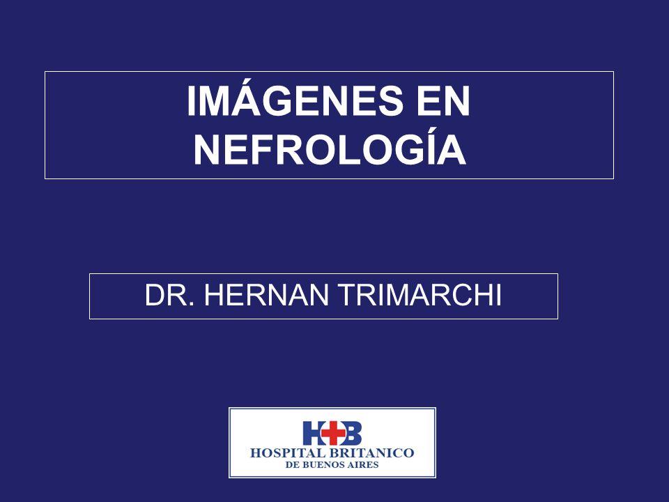 IMÁGENES EN NEFROLOGÍA DR. HERNAN TRIMARCHI