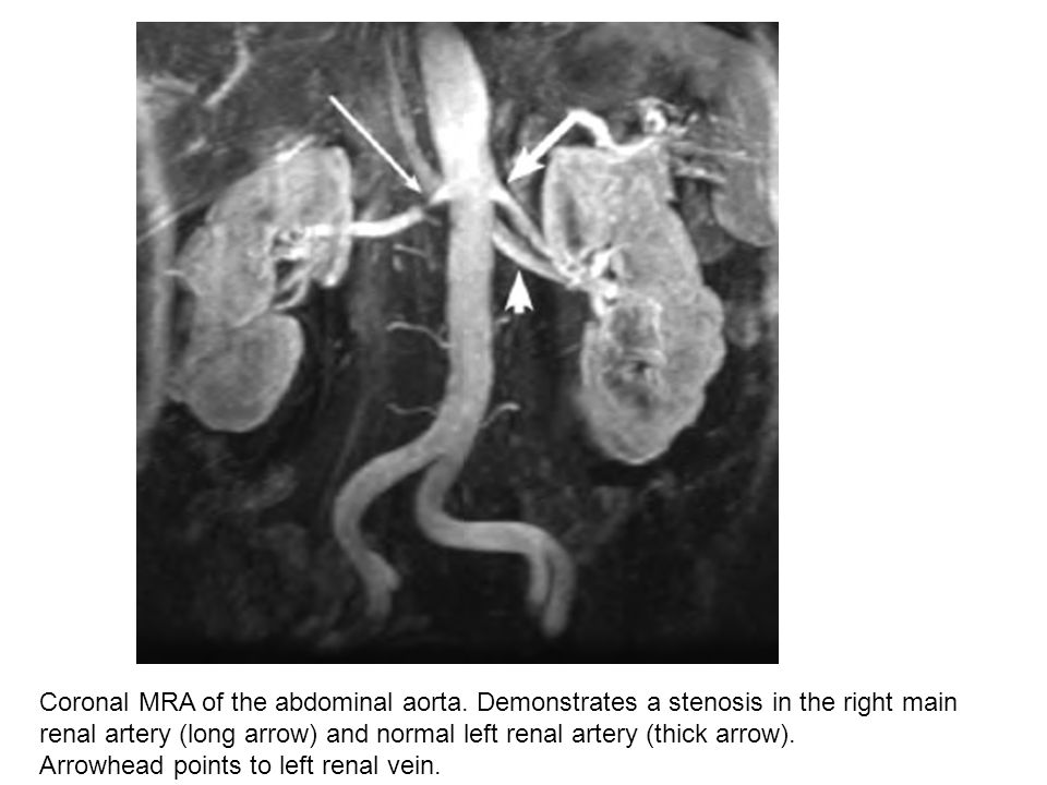 Coronal MRA of the abdominal aorta. Demonstrates a stenosis in the right main renal artery (long arrow) and normal left renal artery (thick arrow). Ar