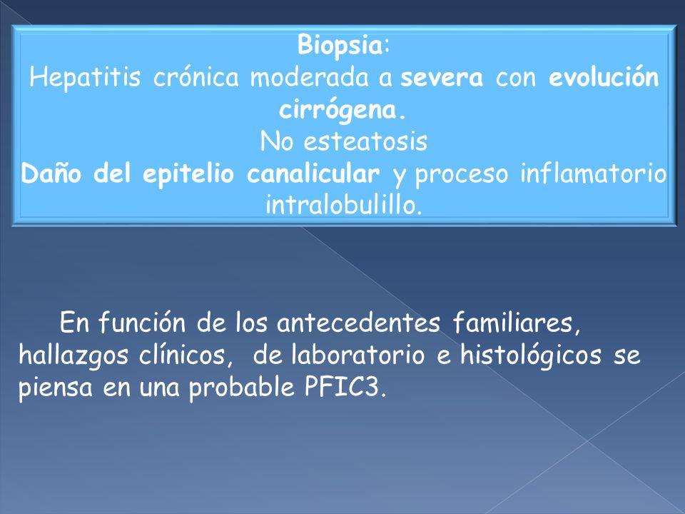 Biopsia: Hepatitis crónica moderada a severa con evolución cirrógena.