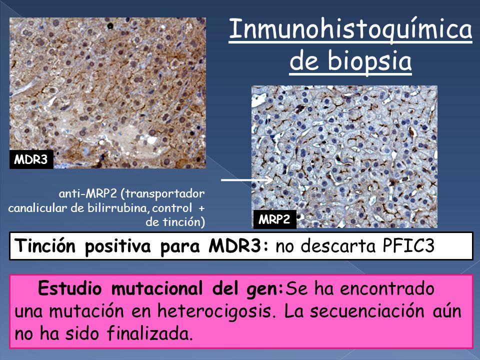 Tinción positiva para MDR3: no descarta PFIC3 MRP2 MDR3 anti-MRP2 (transportador canalicular de bilirrubina, control + de tinción) Inmunohistoquímica de biopsia Estudio mutacional del gen:Se ha encontrado una mutación en heterocigosis.