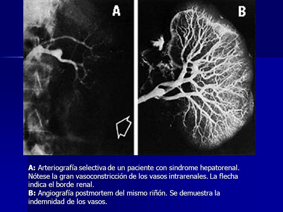 A: Arteriografía selectiva de un paciente con sindrome hepatorenal. Nótese la gran vasoconstricción de los vasos intrarenales. La flecha indica el bor