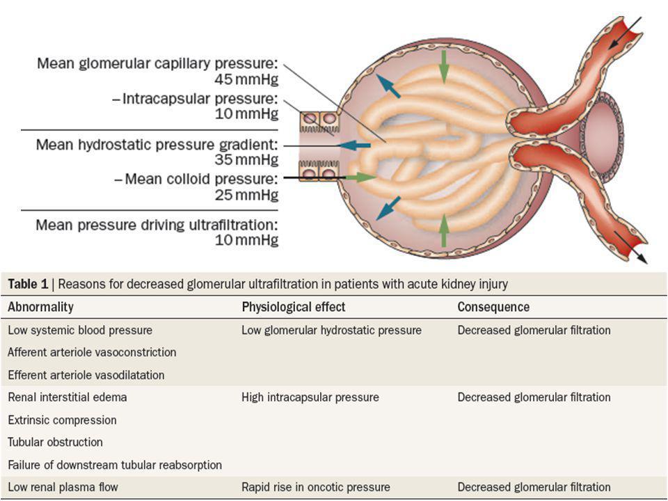 AKI post-renal -Resultado de la obstrucción del sistema colector del tracto urinario.