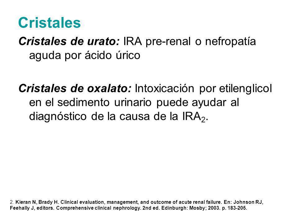 Cristales Cristales de urato: IRA pre-renal o nefropatía aguda por ácido úrico Cristales de oxalato: Intoxicación por etilenglicol en el sedimento urinario puede ayudar al diagnóstico de la causa de la IRA 2.