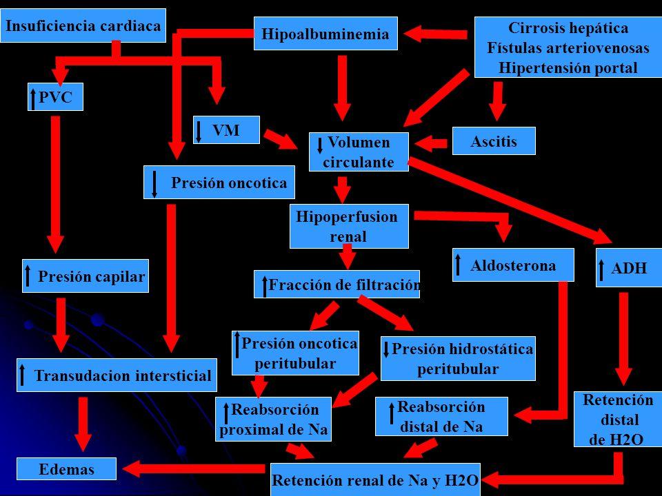 Hipoalbuminemia Cirrosis hepática Fístulas arteriovenosas Hipertensión portal PVC Presión capilar Transudacion intersticial Edemas Presión oncotica VM