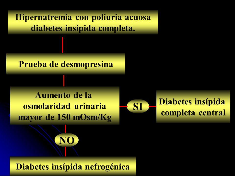 Hipernatremia con poliuria acuosa diabetes insípida completa. Prueba de desmopresina Aumento de la osmolaridad urinaria mayor de 150 mOsm/Kg Diabetes
