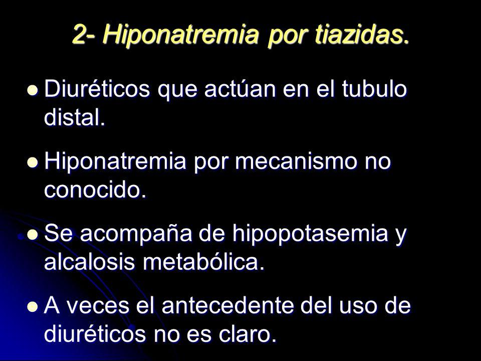 2- Hiponatremia por tiazidas. Diuréticos que actúan en el tubulo distal. Diuréticos que actúan en el tubulo distal. Hiponatremia por mecanismo no cono