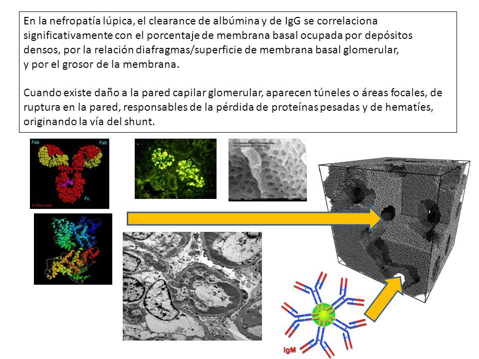 En la nefropatía lúpica, el clearance de albúmina y de IgG se correlaciona significativamente con el porcentaje de membrana basal ocupada por depósito