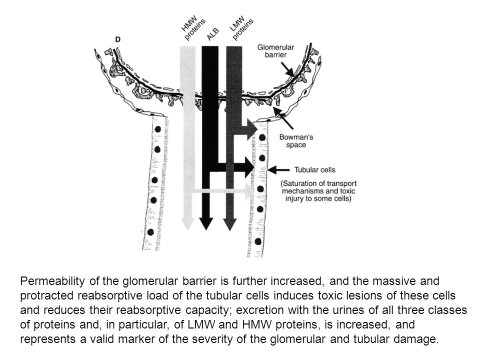 Permeability of the glomerular barrier is further increased, and the massive and protracted reabsorptive load of the tubular cells induces toxic lesio