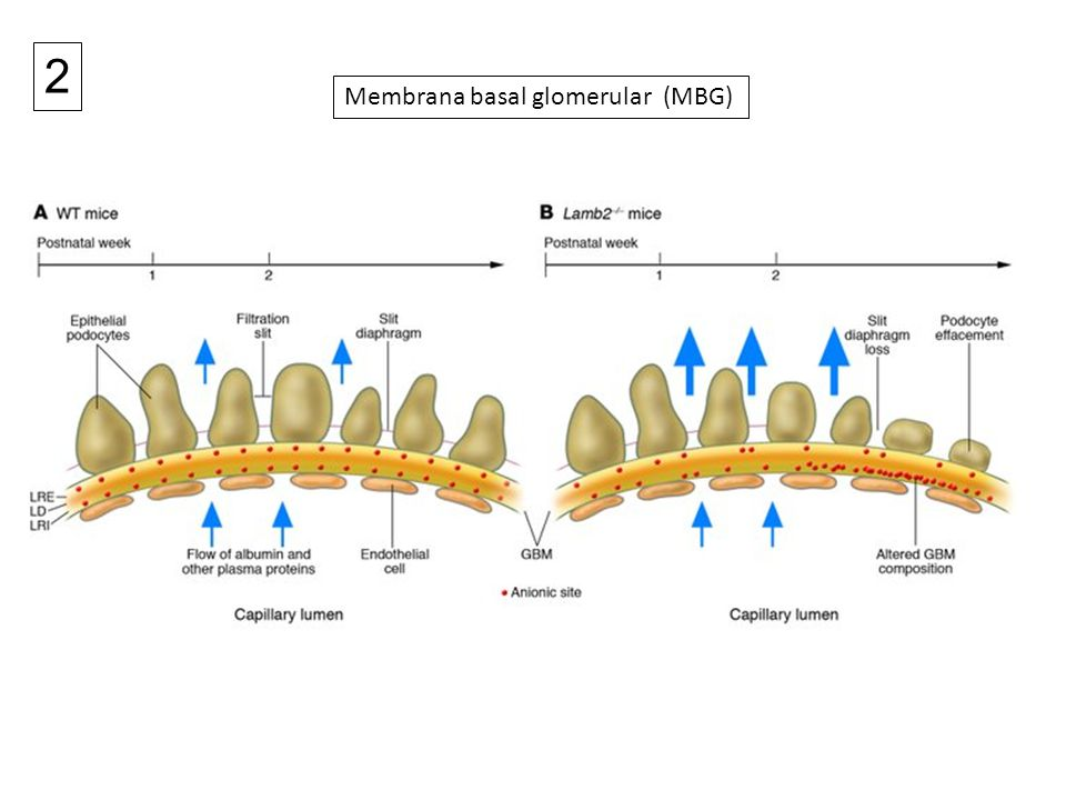 Membrana basal glomerular (MBG) 2
