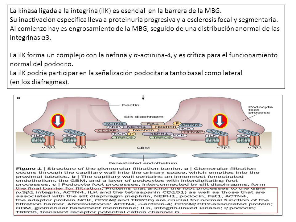 La kinasa ligada a la integrina (ilK) es esencial en la barrera de la MBG. Su inactivación específica lleva a proteinuria progresiva y a esclerosis fo