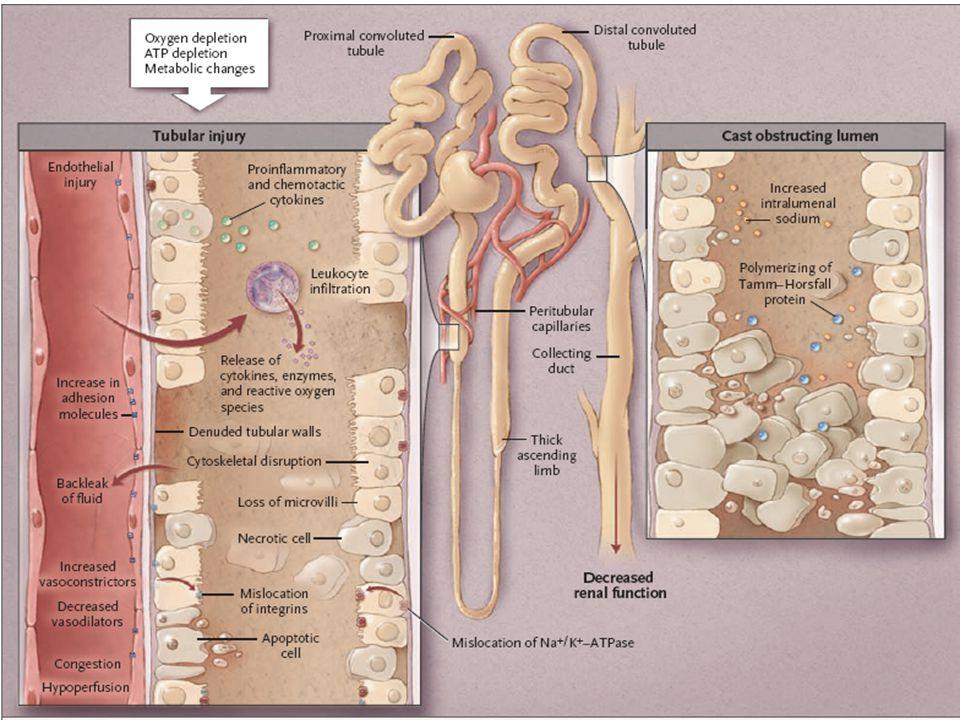 Sepsis La injuria renal aguda séptica (IRAS) se diagnostica en todo paciente que cumpla con los criterios de sepsis, cumpla algunos de los criterios de la clasificación KDIGO y no tenga otras causas establecidas para explicar la IRA.