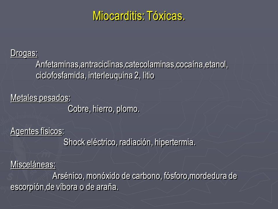 Miocarditis: Tóxicas. Drogas: Anfetaminas,antraciclinas,catecolaminas,cocaína,etanol, ciclofosfamida, interleuquina 2, litio Metales pesados: Cobre, h