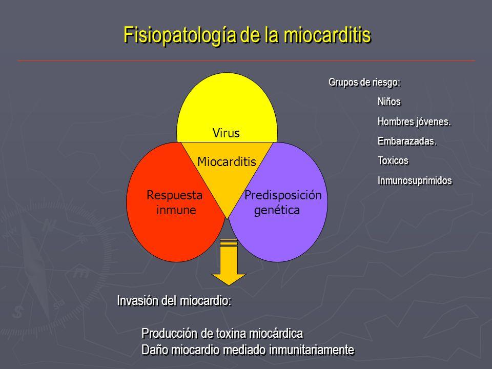 Fisiopatología de la miocarditis Virus Respuesta inmune Predisposición genética Miocarditis Invasión del miocardio: Producción de toxina miocárdica Da