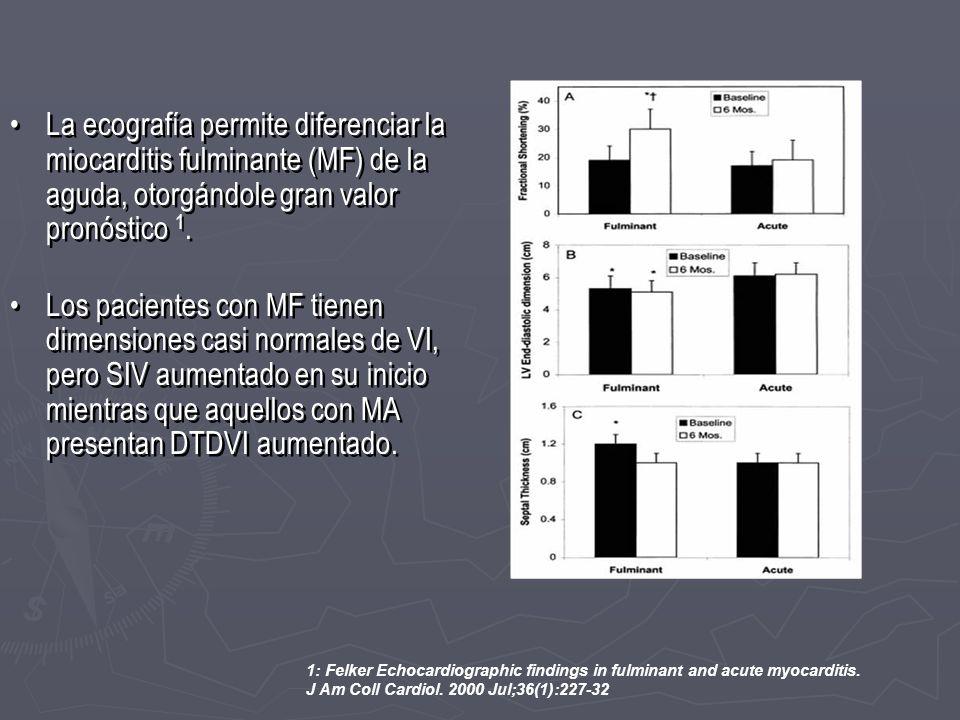 La ecografía permite diferenciar la miocarditis fulminante (MF) de la aguda, otorgándole gran valor pronóstico 1. Los pacientes con MF tienen dimensio