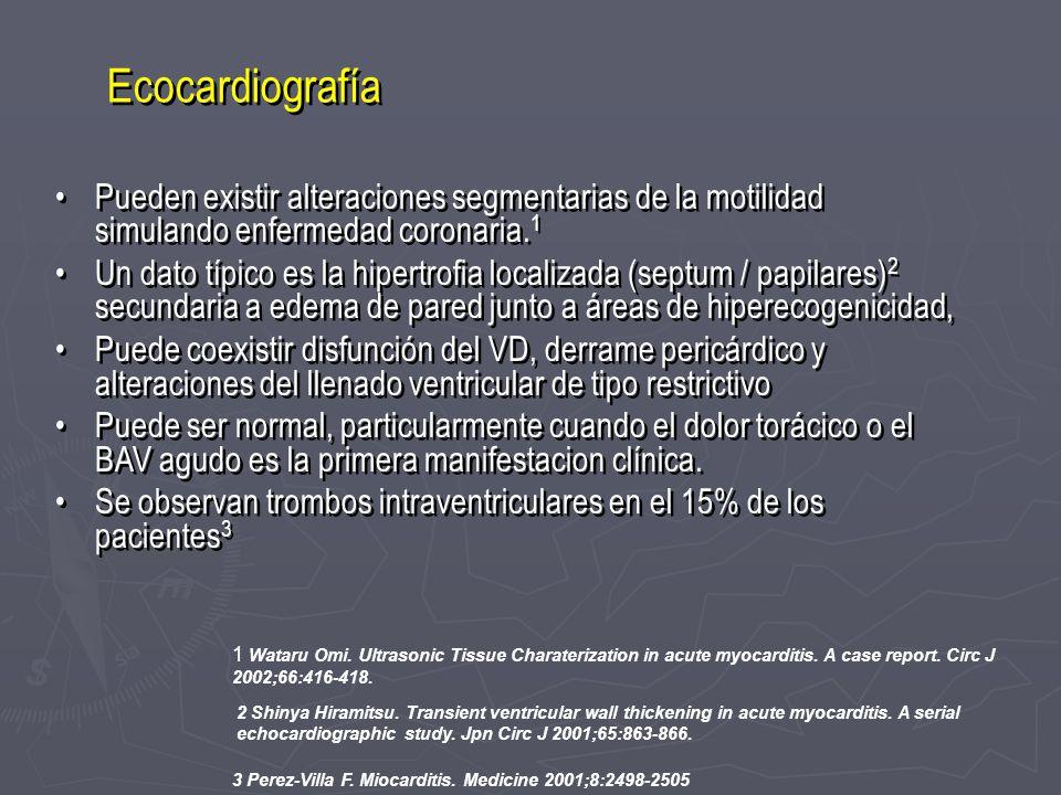 Ecocardiografía Pueden existir alteraciones segmentarias de la motilidad simulando enfermedad coronaria. 1 Un dato típico es la hipertrofia localizada