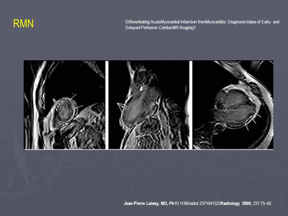 Jean-Pierre Laissy, MD, Ph 10.1148/radiol.2371041322 Radiology 2005; 237:75–82 Differentiating AcuteMyocardial Infarction fromMyocarditis: DiagnosticValue of Early- and Delayed-Perfusion CardiacMR Imaging1 RMN