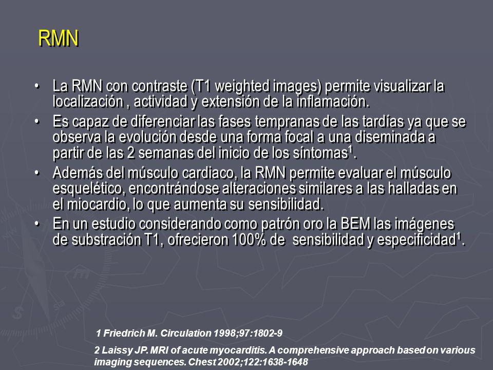 La RMN con contraste (T1 weighted images) permite visualizar la localización, actividad y extensión de la inflamación. Es capaz de diferenciar las fas