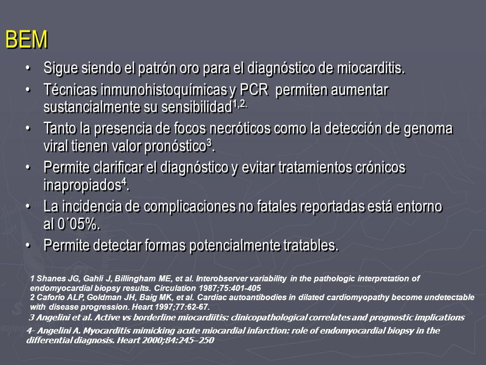BEM Sigue siendo el patrón oro para el diagnóstico de miocarditis. Técnicas inmunohistoquímicas y PCR permiten aumentar sustancialmente su sensibilida