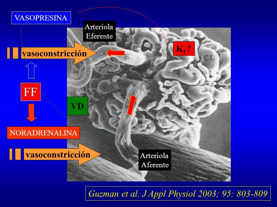 Arteriola Eferente Arteriola Aferente NORADRENALINA vasoconstricción VASOPRESINA vasoconstricción FF K f ? VD Guzman et al. J Appl Physiol 2003; 95: 8