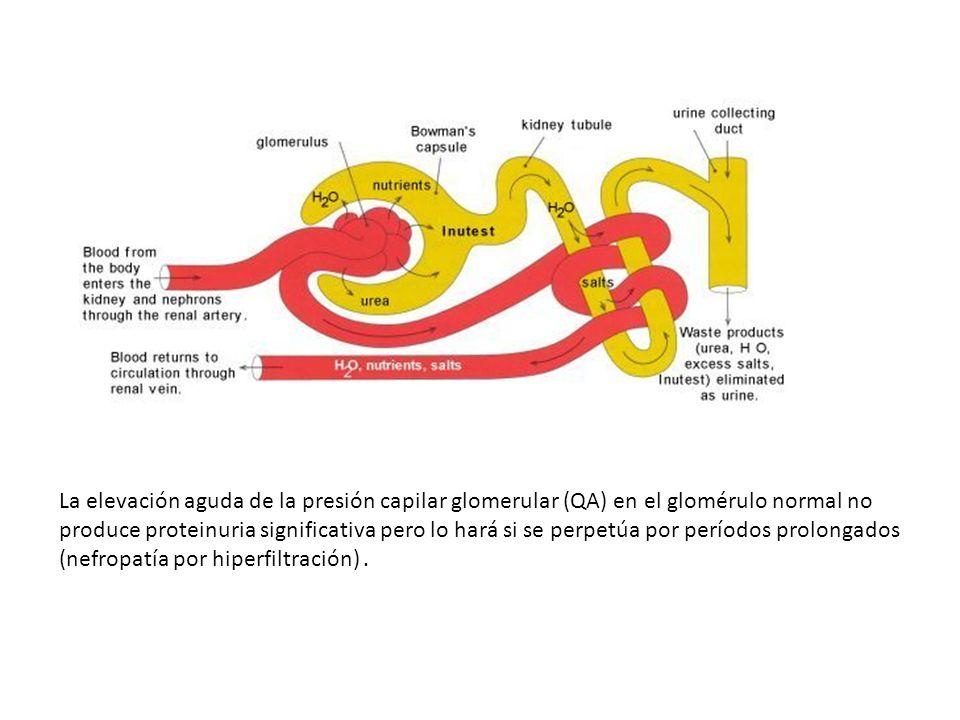 La elevación aguda de la presión capilar glomerular (QA) en el glomérulo normal no produce proteinuria significativa pero lo hará si se perpetúa por p