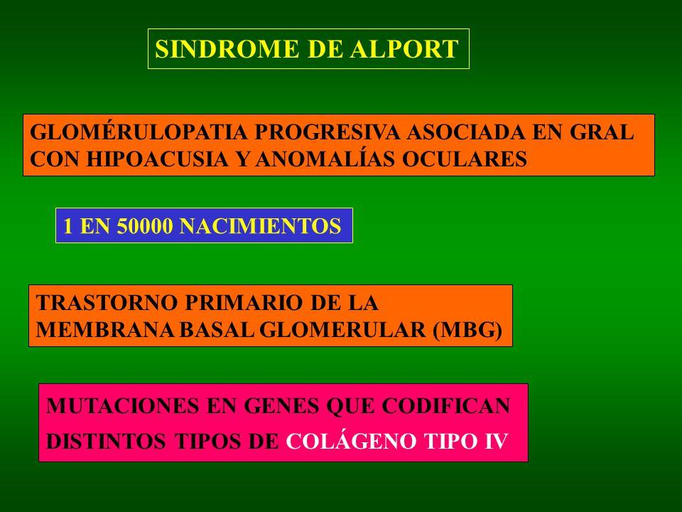 SINDROME DE ALPORT GLOMÉRULOPATIA PROGRESIVA ASOCIADA EN GRAL CON HIPOACUSIA Y ANOMALÍAS OCULARES 1 EN 50000 NACIMIENTOS TRASTORNO PRIMARIO DE LA MEMBRANA BASAL GLOMERULAR (MBG) MUTACIONES EN GENES QUE CODIFICAN DISTINTOS TIPOS DE COLÁGENO TIPO IV