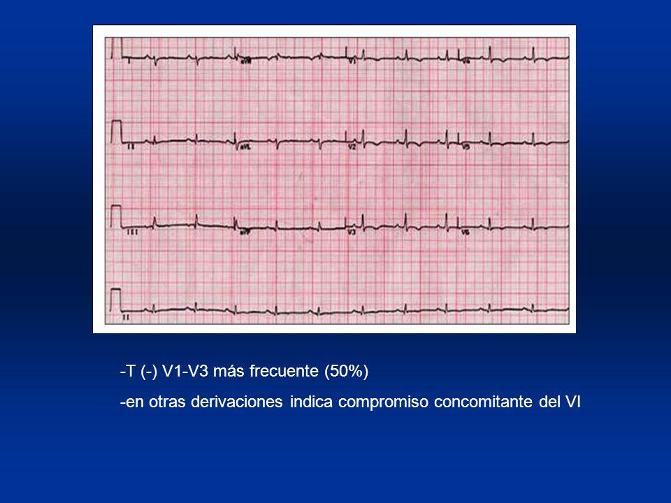 -T (-) V1-V3 más frecuente (50%) -en otras derivaciones indica compromiso concomitante del VI