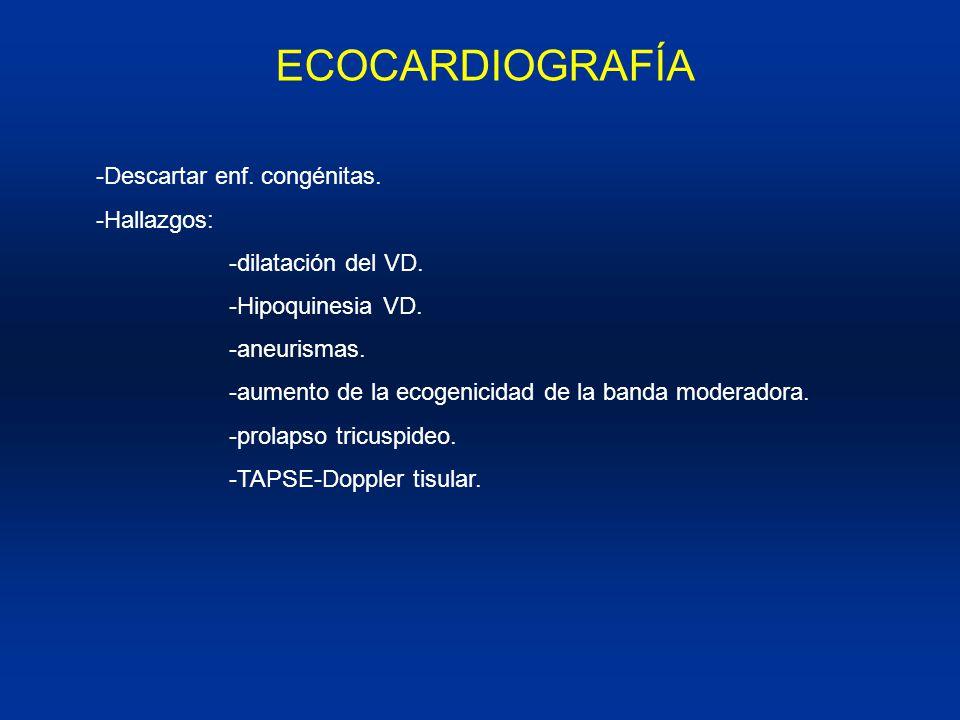 ECOCARDIOGRAFÍA -Descartar enf. congénitas. -Hallazgos: -dilatación del VD. -Hipoquinesia VD. -aneurismas. -aumento de la ecogenicidad de la banda mod