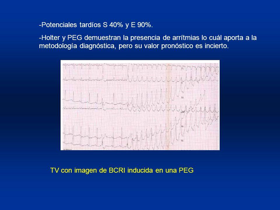 -Potenciales tardíos S 40% y E 90%. -Holter y PEG demuestran la presencia de arrítmias lo cuál aporta a la metodología diagnóstica, pero su valor pron