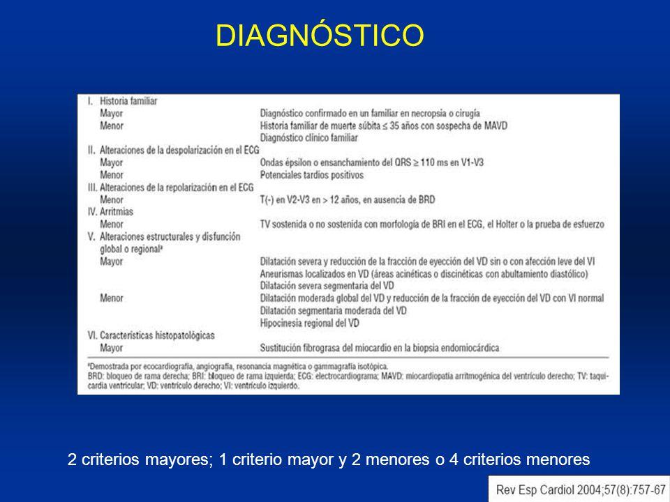 DIAGNÓSTICO 2 criterios mayores; 1 criterio mayor y 2 menores o 4 criterios menores