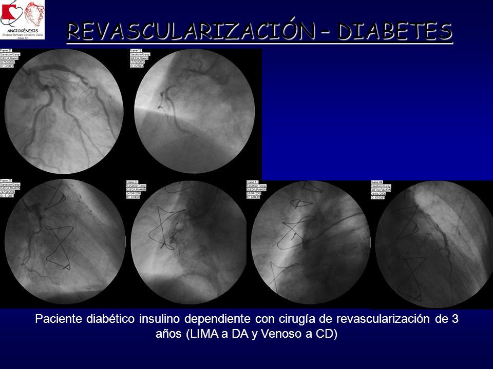 REVASCULARIZACIÓN – DIABETES Paciente diabético insulino dependiente con cirugía de revascularización de 3 años (LIMA a DA y Venoso a CD)