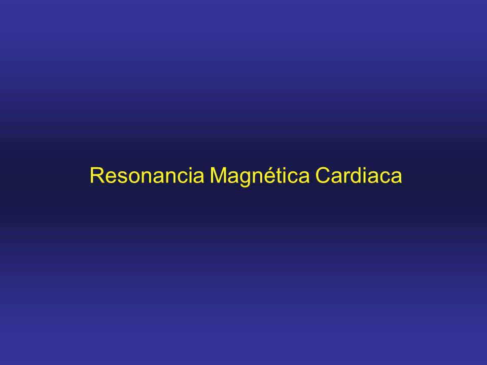 Resonancia Magnética Cardiaca