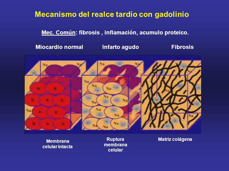 Membrana celular intacta Ruptura membrana celular Matriz colágena Miocardio normalInfarto agudo Fibrosis Mecanismo del realce tardío con gadolinio Mec