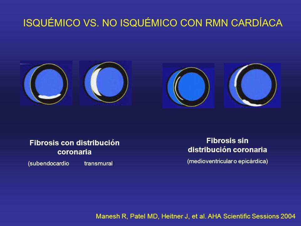 ISQUÉMICO VS. NO ISQUÉMICO CON RMN CARDÍACA Fibrosis con distribución coronaria (subendocardio transmural) Fibrosis sin distribución coronaria (mediov