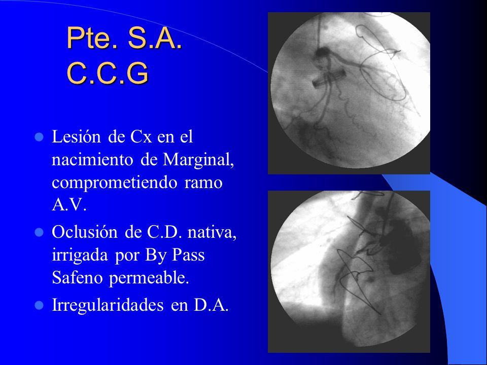 Pte. S.A. C.C.G Lesión de Cx en el nacimiento de Marginal, comprometiendo ramo A.V. Oclusión de C.D. nativa, irrigada por By Pass Safeno permeable. Ir