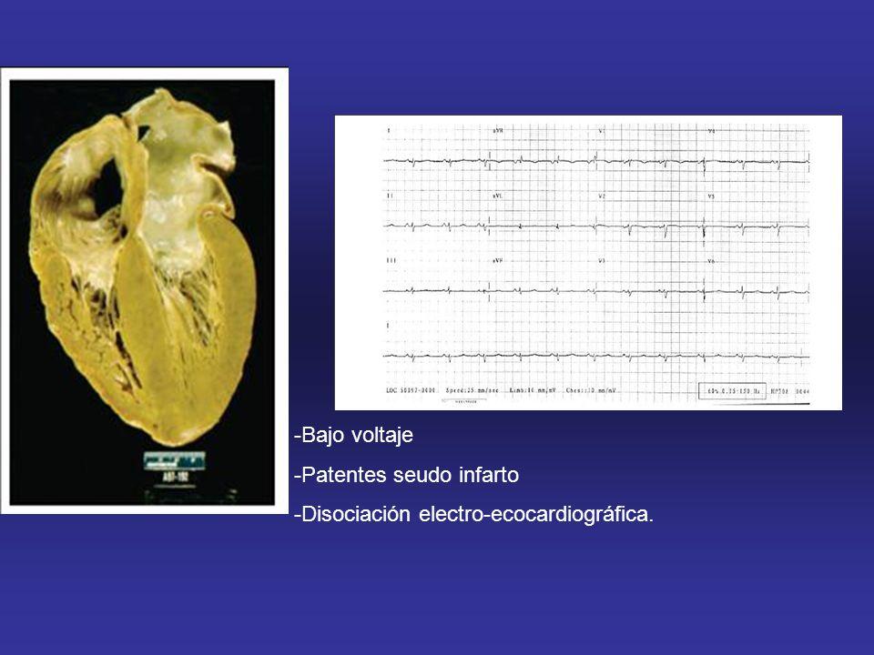 -Bajo voltaje -Patentes seudo infarto -Disociación electro-ecocardiográfica.