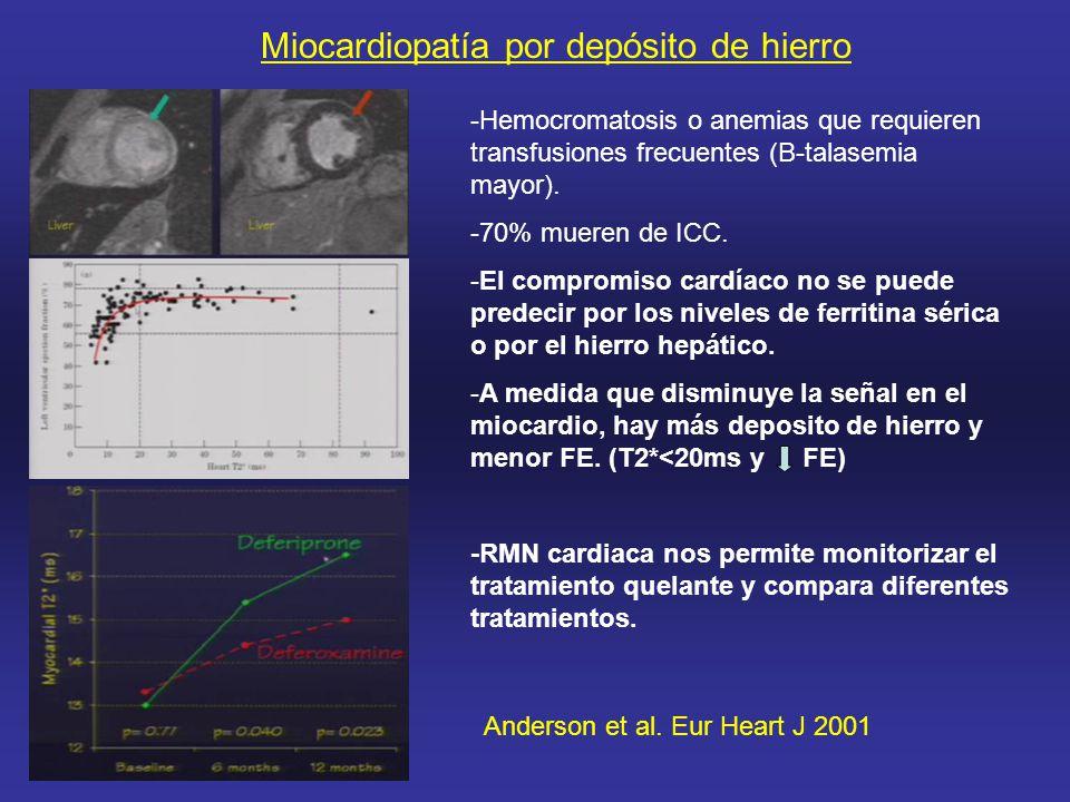Miocardiopatía por depósito de hierro -Hemocromatosis o anemias que requieren transfusiones frecuentes (B-talasemia mayor).