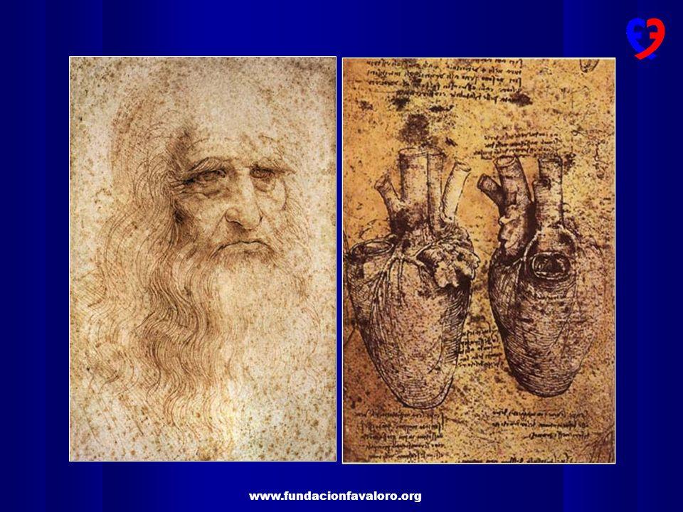 CONDUCTOS ARTERIALES DOBLE MAMARIA Mejora la supervivencia a largo plazo y reduce la prevalencia de reintervenciones Pts diabéticos Esperanza de vida > a 10 años Múltiples factores de riesgo asociados MAYOR BENEFICIO J Thorac Cardiovasc Surg 2004;127:1408-15 Eur J Cardiothorac Surg 2004;26:542-8