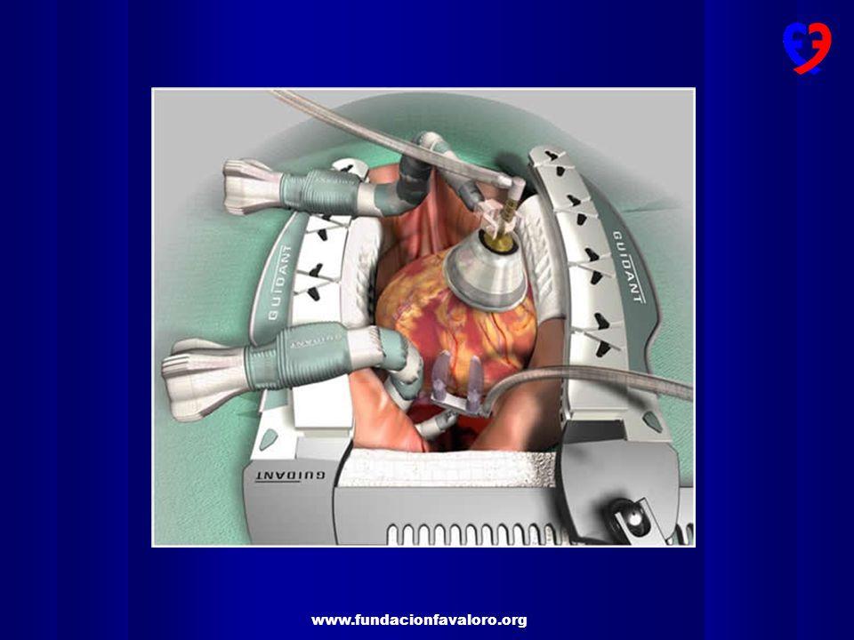 www.fundacionfavaloro.org Estabilizadores de última generación para cirugía coronaria sin circulación extracorpórea TECNICA QUIRURGICA OPCABG