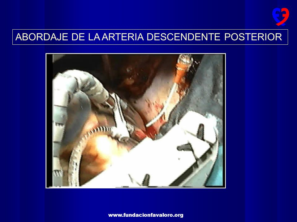 www.fundacionfavaloro.org ABORDAJE DE LA ARTERIA CIRCUNFLEJA