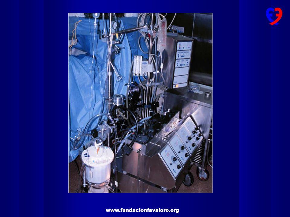 www.fundacionfavaloro.org Cirugía de revascularización miocárdica con y sin circulación extracorpórea 1%18%22%13%22%31%23%29%18% 27%